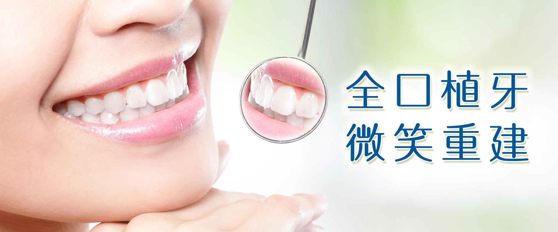 All-on-4植牙完美。尊榮醫療團隊